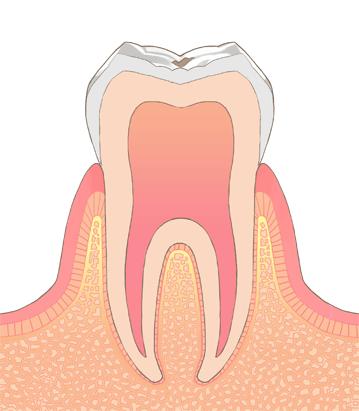 むし歯・虫歯の進行C0