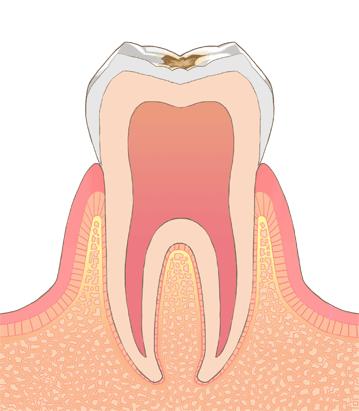 むし歯・虫歯の進行C1