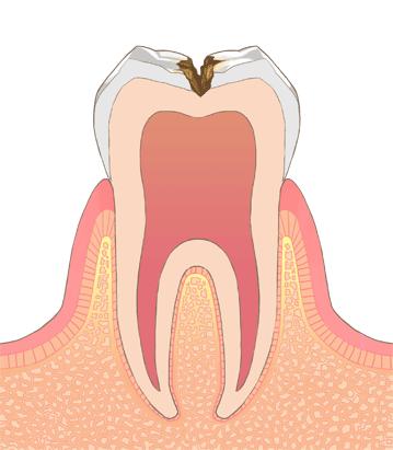 むし歯・虫歯の進行C2