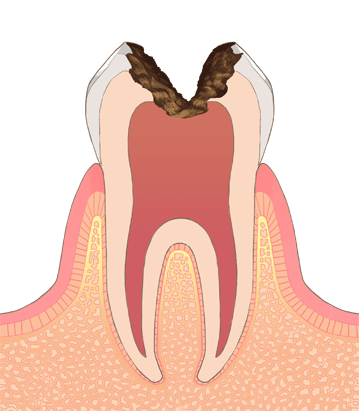 むし歯・虫歯の進行C3
