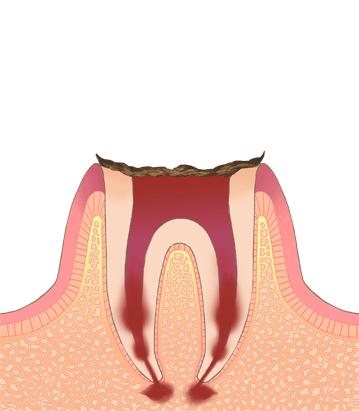 むし歯・虫歯の進行C4