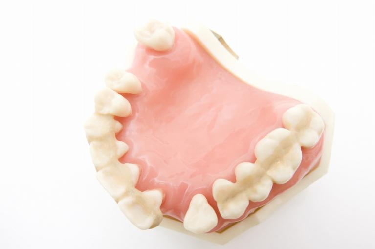 歯周ポケットにたまった歯垢・歯石が炎症を引き起こします